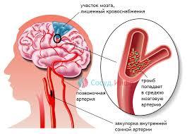 Причины и симптомы ишемического инсульта. Его последствия и ...